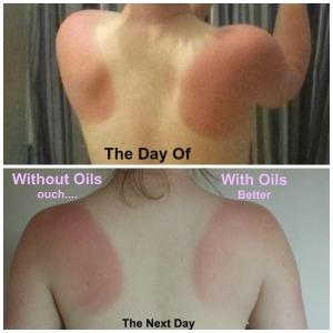 Sunburn collage